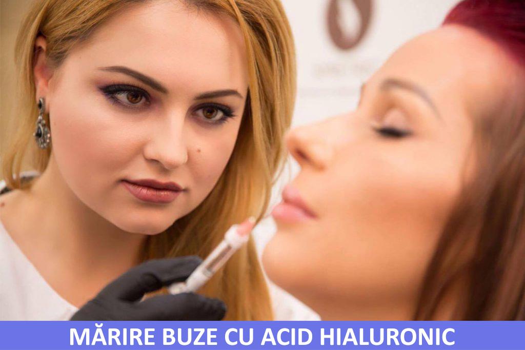 Marire buze cu acid hialuronic