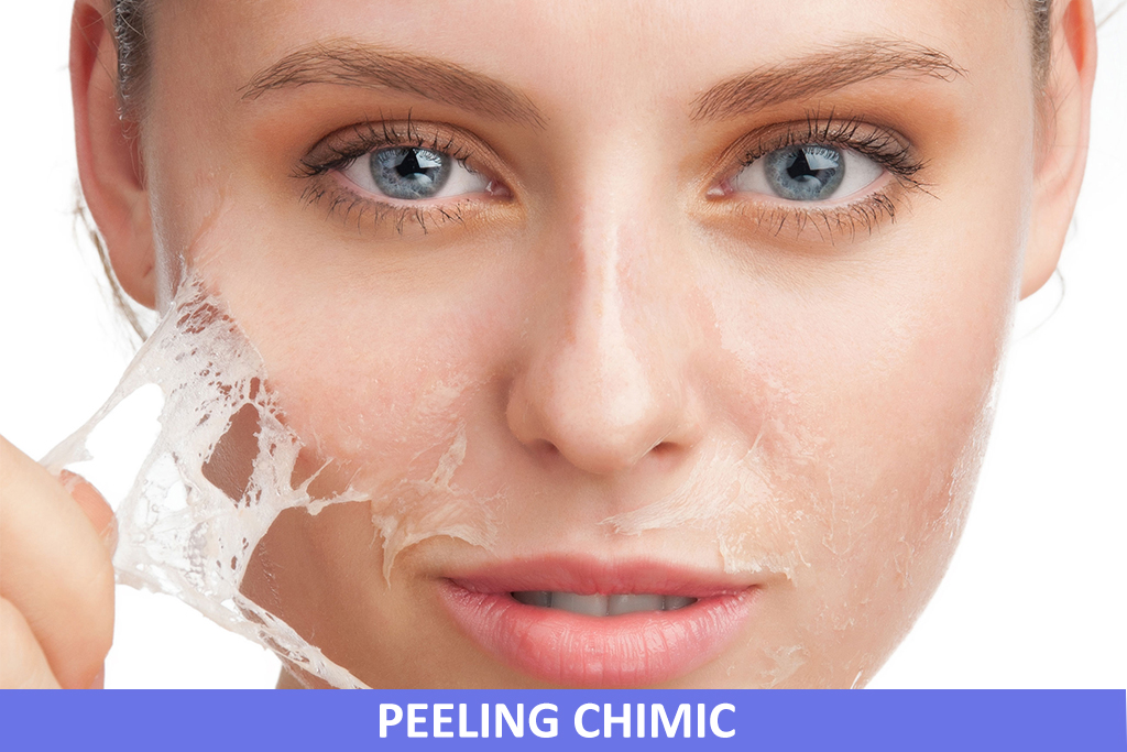 Peeling Chimic Facial