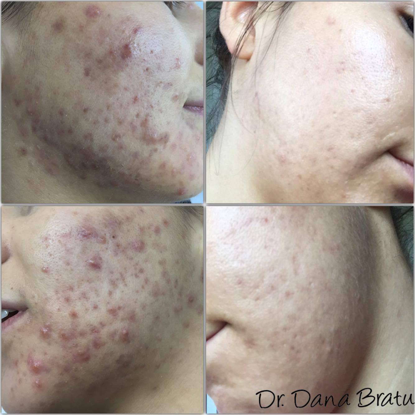 Peeling Facial Chimic