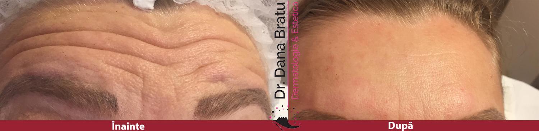 Tratament Botox