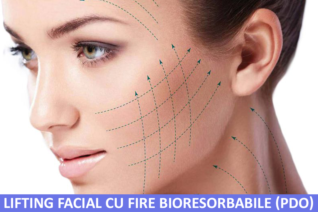 Lifting Facial cu Fire Bioresorbabile (PDO)