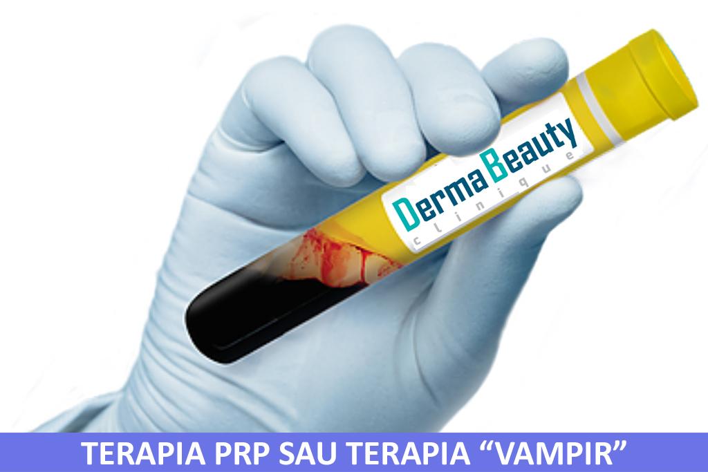 "Terapie PRP sau Terapia ""Vampir"""
