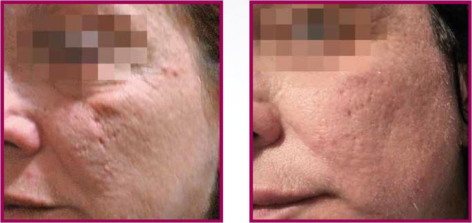 PRX-T33 Tratament cicatrici