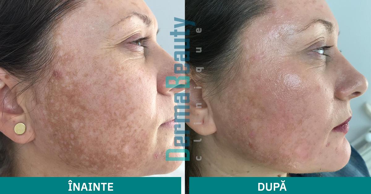 Tratament Peeling & Depigmentare Cosmelan