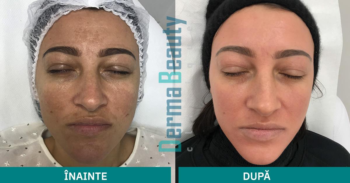 Tratament impotriva petelor pigmentare