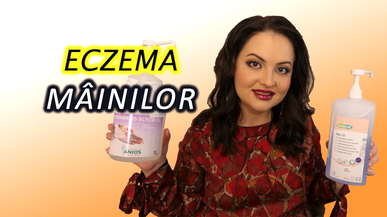 Eczema mainilor